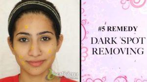 Dark Spots Treatment using toothpaste